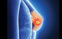 Καρκίνος-μαστού